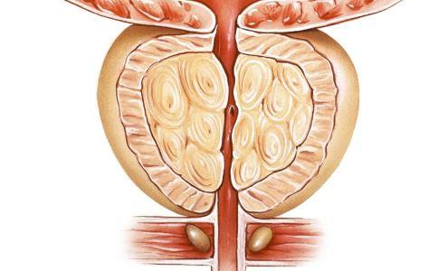 前列腺炎的症状与危害 前列腺炎的预防方法 前列腺炎如何治疗