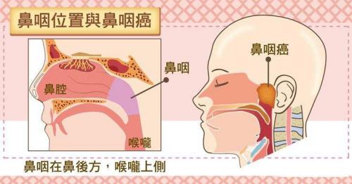 花样少女突患鼻咽癌,幸好赴台长庚及时诊治