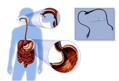 天津滨江肛肠医院:出现烧心、胸痛别轻视,及时就医检查保护胃健康