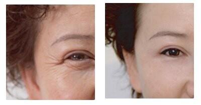 北京幻眼国际帮你对抗眼部老化
