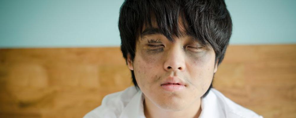 不熬夜为什么会有黑眼圈 黑眼圈该怎么消除 有黑眼圈的原因